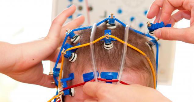 Cách phát hiện sớm bệnh động kinh ở trẻ quan trọng nhất là điện não đồ